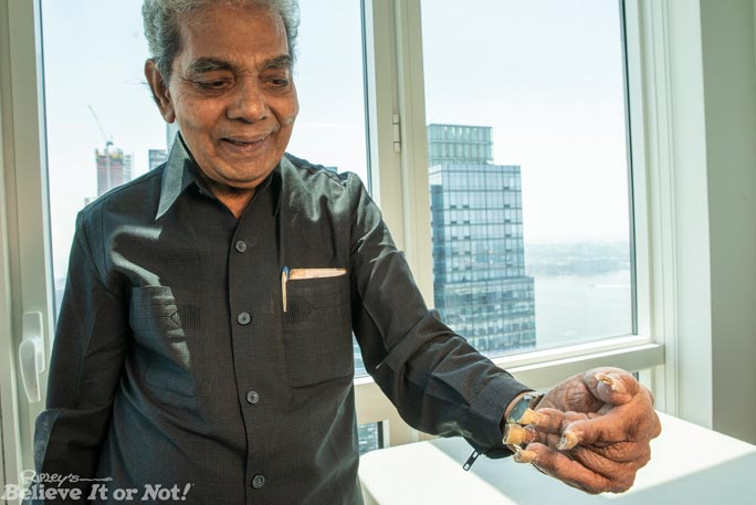 Man cuts nails on left hand for first time since 1952