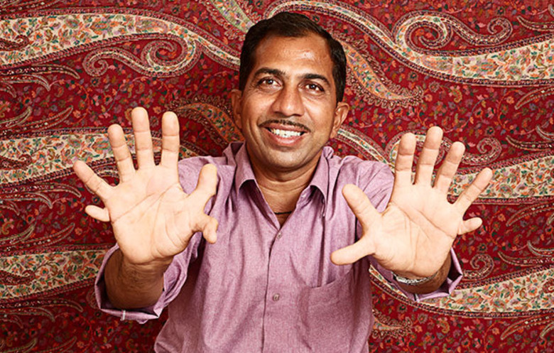 Most fingers and toes (polydactylism) on a living person